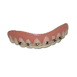 Billy-Bob Teeth - Braces 100-147609